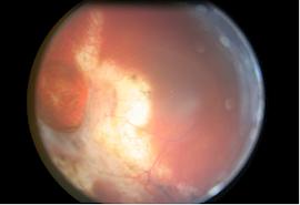 Vision-Ère   Clinique d'optométrie